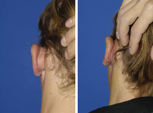 ear surgery women plastic surgery procedure