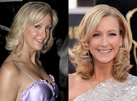 lara spencer plastic surgery before and after photo