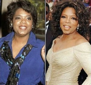 Oprah Winfrey before and after photo