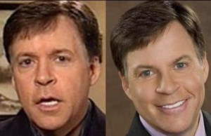 Bob Costas Plastic Surgery Before and After Photo