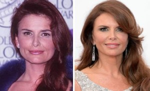 Roma Downey Plastic Surgery Before and After Pictures