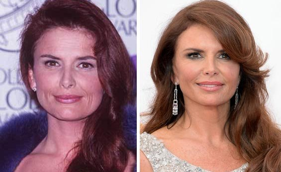 roma downey before and after photo