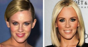 Jenny McCarthy Plastic Surgery Before And After Photos