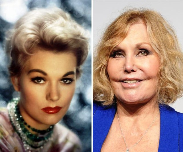 Kim Novak plastic surgery before after 2014