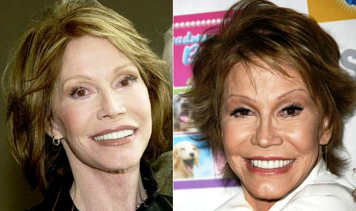 Mary Tyler Moore before and after plastic surgery photo