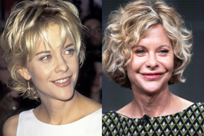 Meg Ryan Plastic Surgery Disaster Before And After