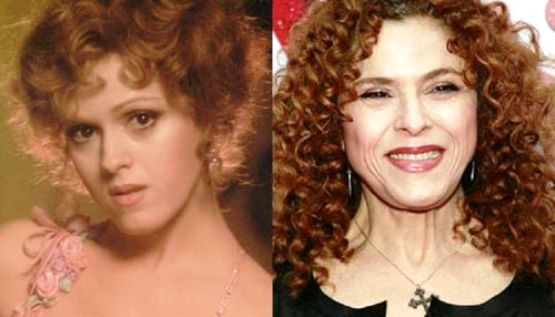 Bernadette-Peters-before-after