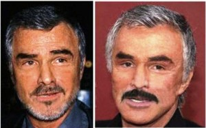 Burt Reynolds Plastic Surgery Before and After Photos