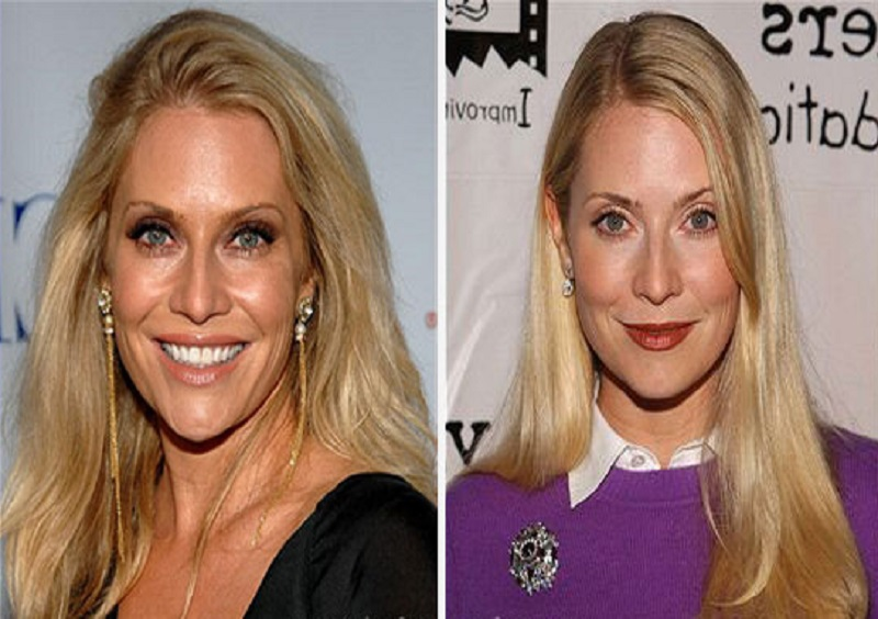 And have emily procter plastic surgery before after