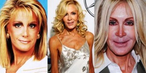 Joan Van Ark Plastic Surgery Before and After Photos