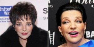 Liza Minnelli Plastic Surgery Before And After Photo