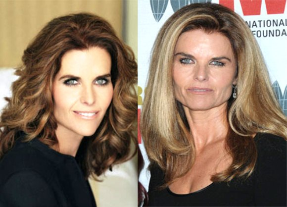Maria-Shriver-Plastic-Surgery-Picture
