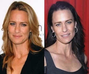 Robin Wright Penn Plastic Surgery Before and After Photos
