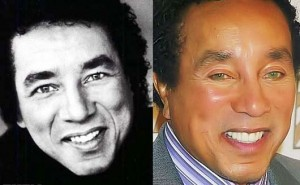 Smokey Robinson Plastic Surgery Before And After Photos
