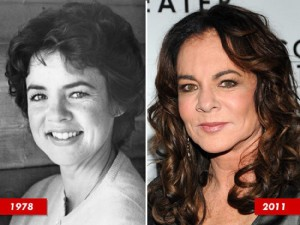 Stockard Channing Plastic Surgery Before and After Photos