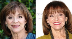 Valerie Harper Plastic Surgery Before And After Photos