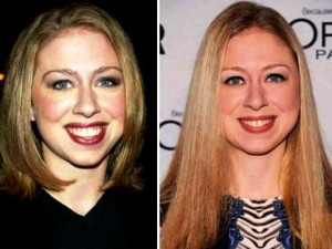 Chelsea Clinton Plastic Surgery Before And After Photos