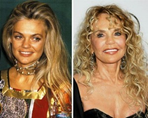 Dyan Cannon Plastic Surgery Before and After Photos