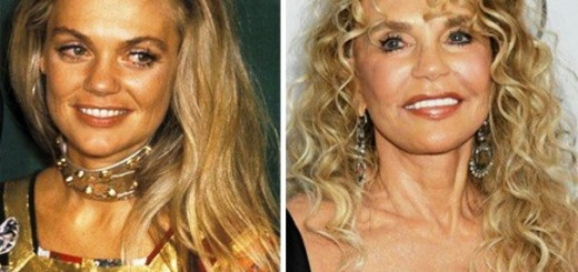 Celebrity Plastic Surgery Before And After Photos News