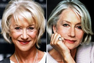 Helen Mirren Plastic Surgery Before and After Photos