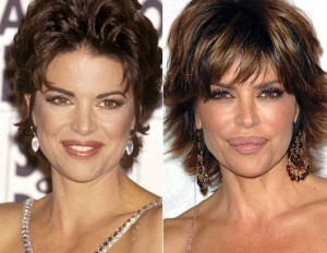Lisa Rinna Plastic Surgery Before and After Photos