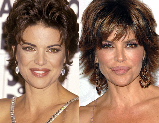 lisa_rinna_plastic_surgery