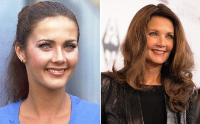 lynda-carter-plastic-surgery-before-and-after