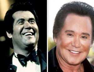 wayne newton plastic surgery before after