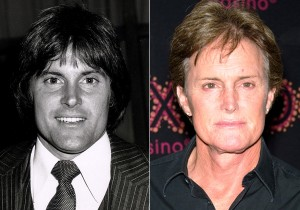 Bruce Jenner Face Uplift Before And After Photos