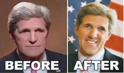 John Kerry Face Lift Surgery Before and After