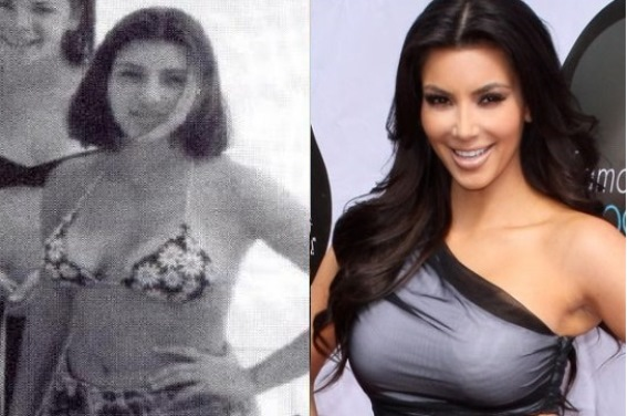 Kim-Kardashian-Before-and-After-Breast-Implants