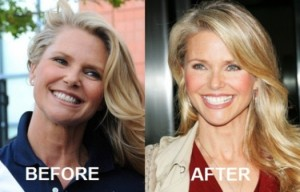 Christie Brinkley Plastic Surgery Before And After Photos