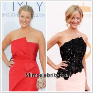 Anna Gunn Plastic Surgery Before and After Photo