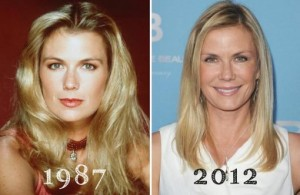 Katherine Kelly Lang Plastic Surgery Before And After Photos