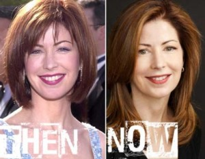 Dana Delany Plastic Surgery Before And After Photos
