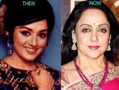 Hema Malini Plastic Surgery Before And After