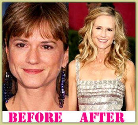 Holly Hunter Plastic Surgery Before And After Photos