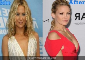 Kate Hudson Boob Job Before And After Photos
