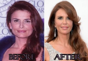 Roma Downey Plastic Surgery Before and After Photos