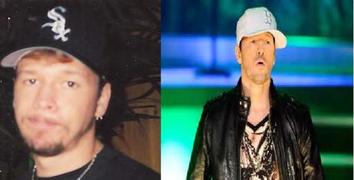 Donnie Wahlberg Plastic Surgery Before and After Photo