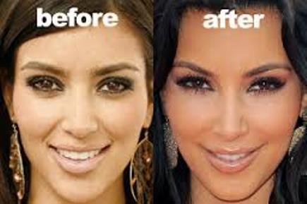 Kim Kardashian Nose Job Before And After Photos