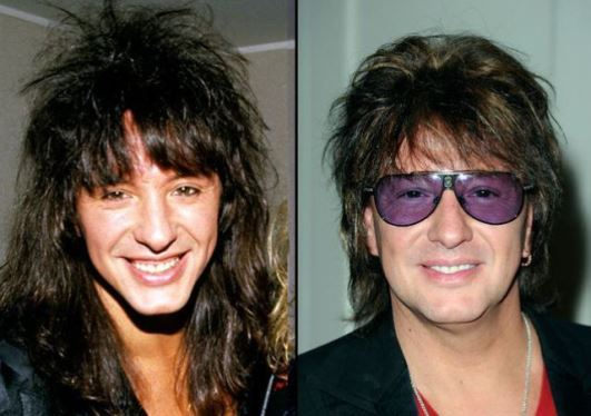Richie Sambora Plastic Surgery Before and After Photos