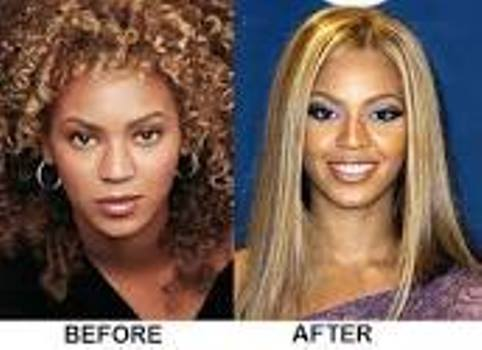 Beyonce Nose Job Before And After Photos