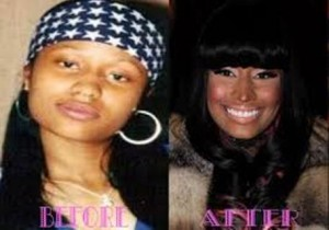 Nicki Minaj Before Plastic Surgery Photos