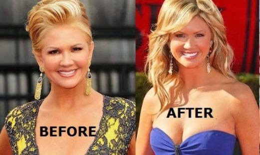 Nancy O'Dell Plastic Surgery Before And After Photos