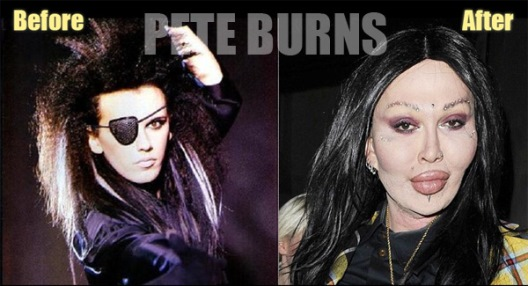 Pete Burns Plastic Surgery Before And After Photos