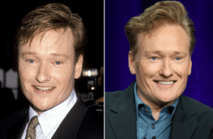 Conan O'Brien Plastic Surgery Before and After Photos