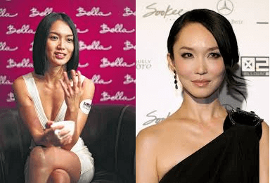 Fann Wong plastic surgery before and after