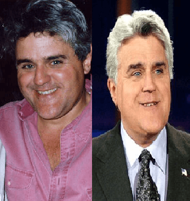 Jay Leno Plastic Surgery before and after