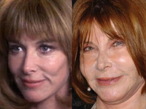 Lee Grant Plastic Surgery Before and After Photos